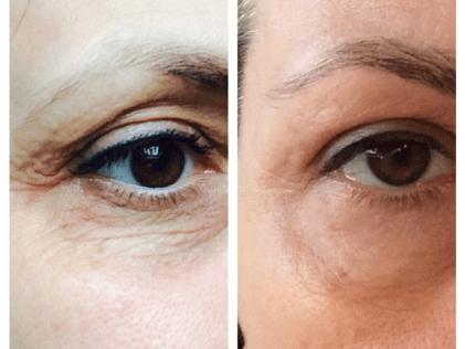 Elimina arrugas y marcas alrededor del ojo