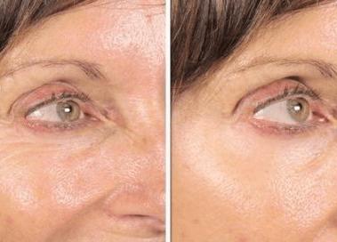 ácido hialurónico para ojos en Granada