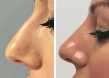 ácido hialurónico para nariz en Granada